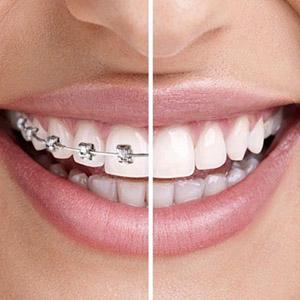 Dental Cosmetics package